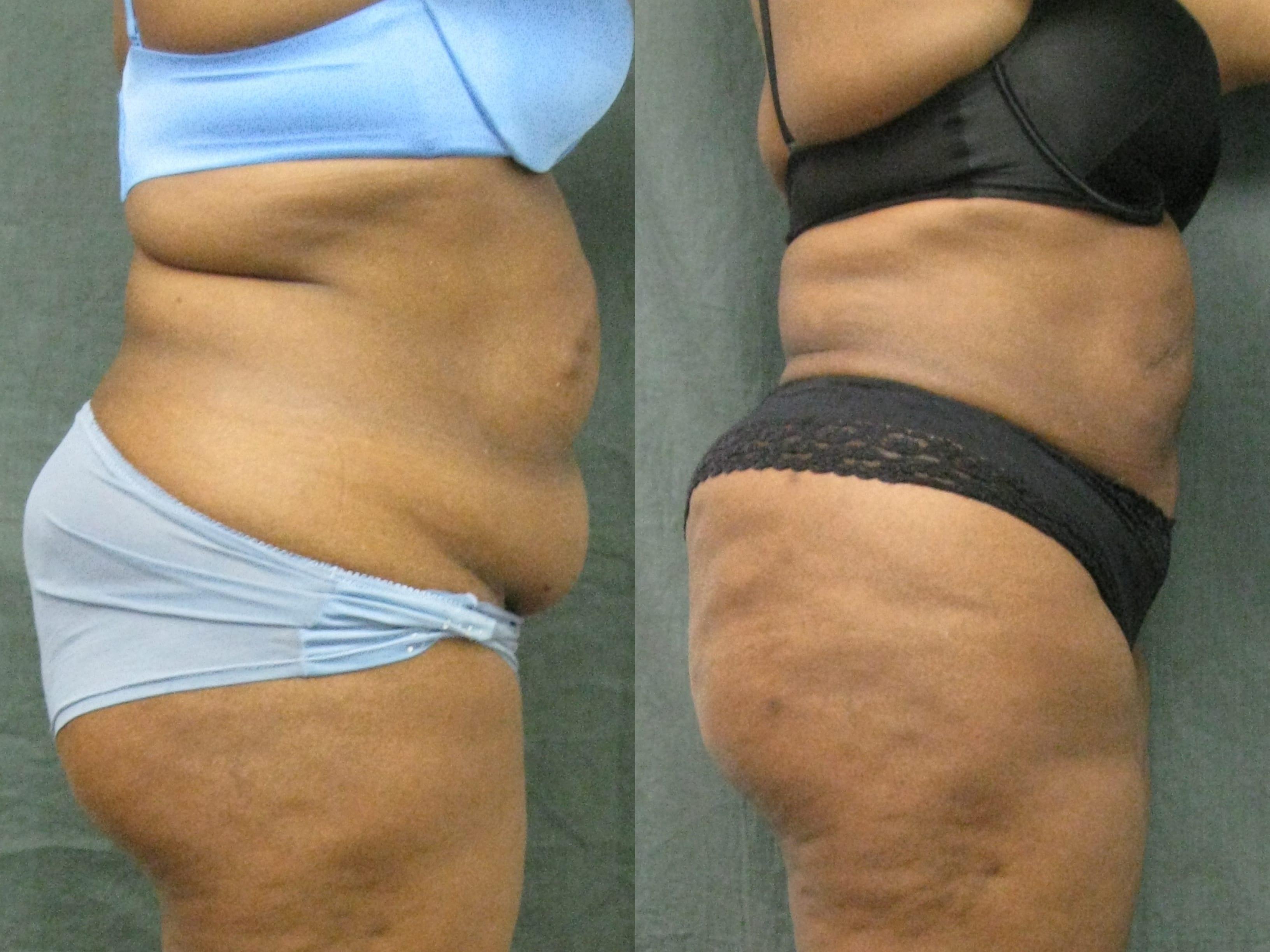 Dr. Matt Goldschmidt | Liposuction Before & After Photo