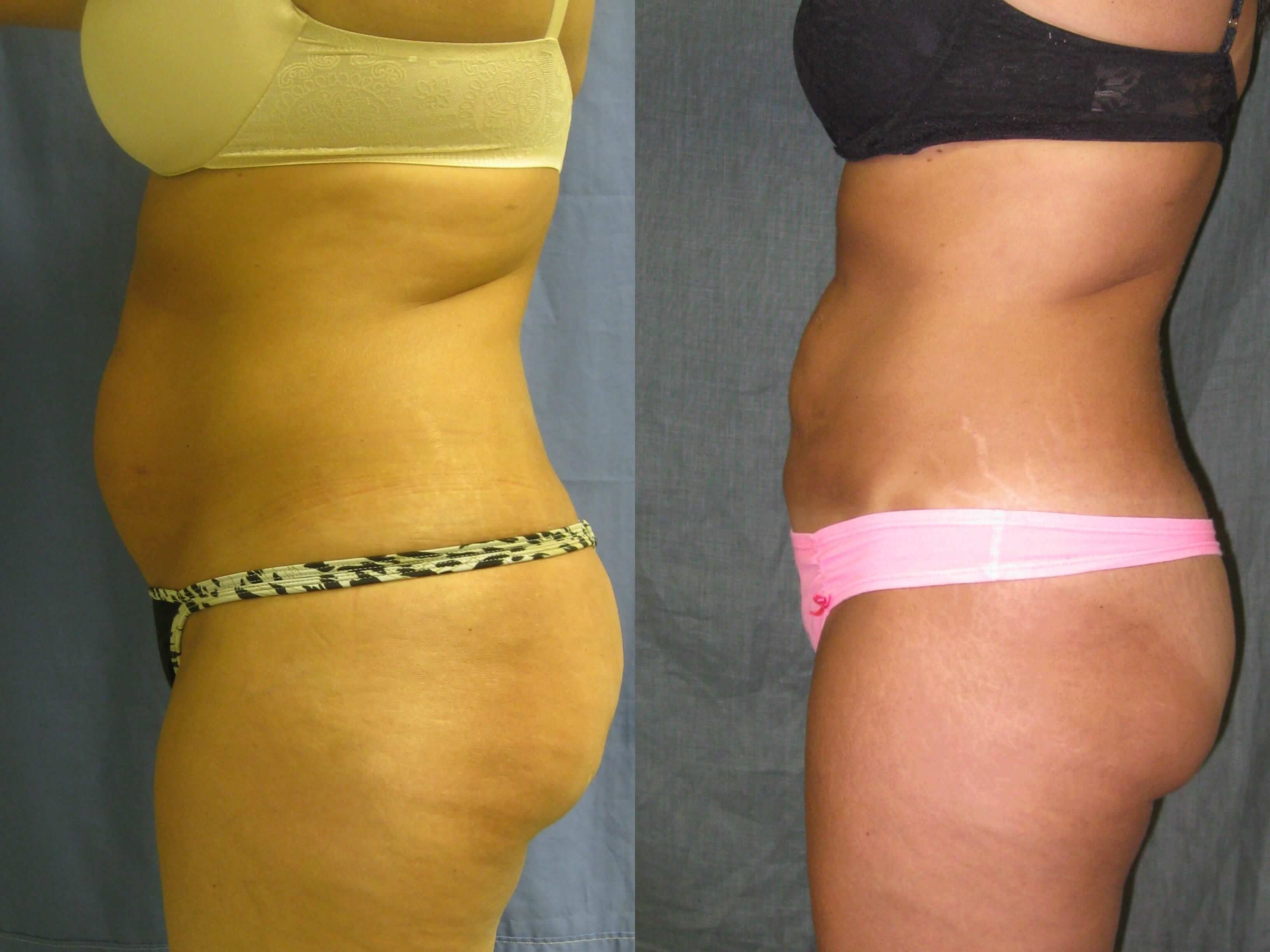 Dr. Matt Goldschmidt | Liposuction Before & After Photo