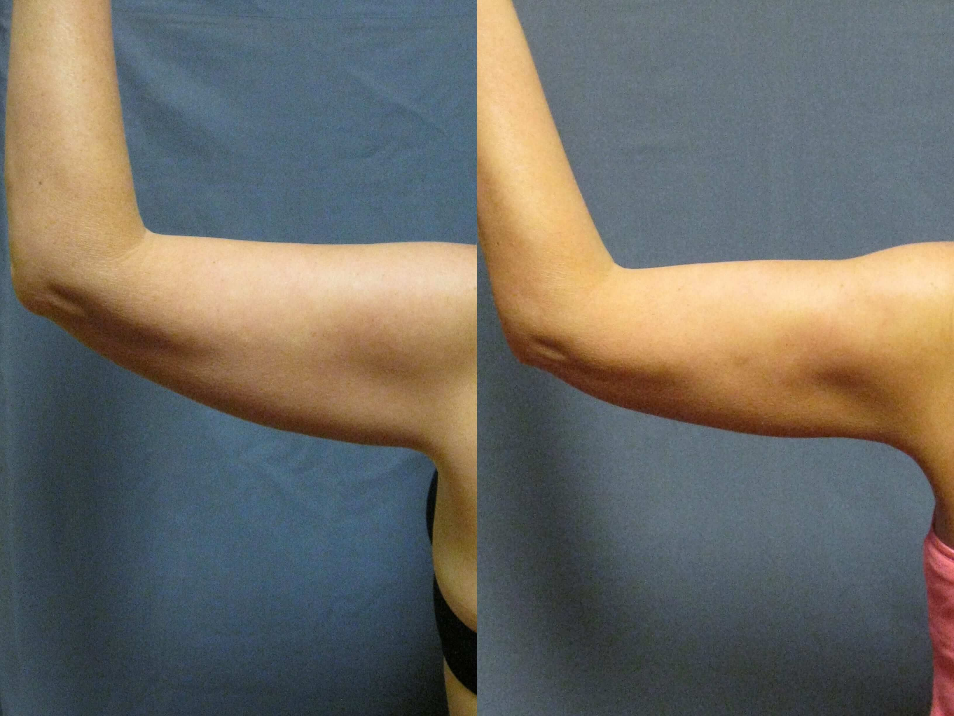 Dr. Matt Goldschmidt | Arm Lift Before & After Photo