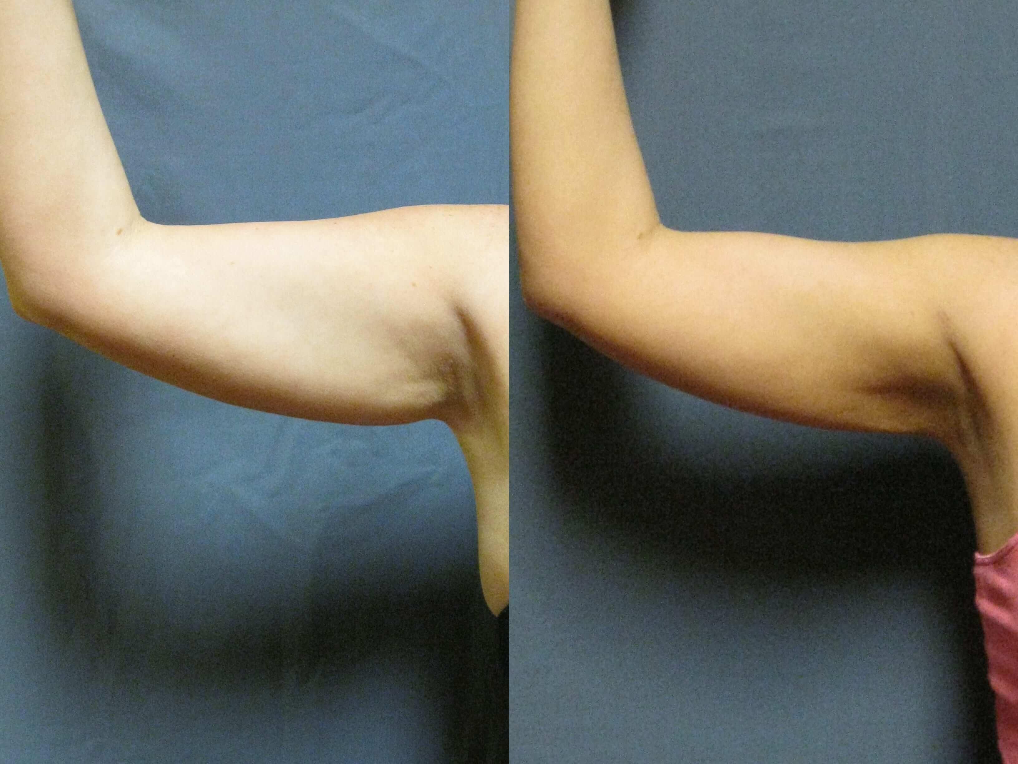 Dr. Matt Goldschmidt | Arm Lift Before & After Photo