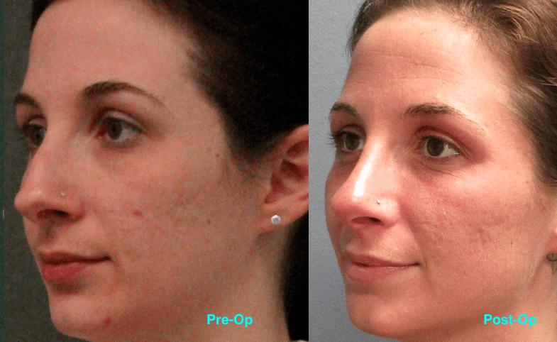 Dr. Matt Goldschmidt | Rhinoplasty Before & After Photo