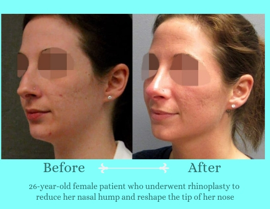 rhinoplasty-before-after-patient-2a-921-blog-ba-img