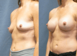 Dr. Matt Goldschmidt Breast Augmentation patient with Implants
