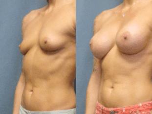 Dr Matt Goldschmidt Gel Breast Implant patient