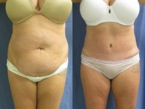 Abdominoplasty Patient 01 before and after facing forward.