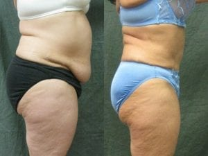Abdominoplasty Patient 04 before and after facing right.