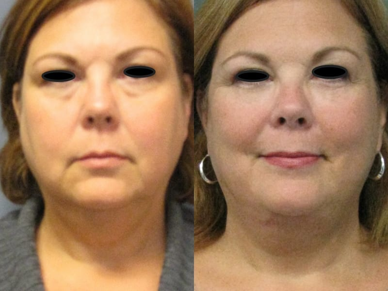 Blepharoplasty Patient 01 before and after facing forward. blepharoplasty-before-after-patient-1a