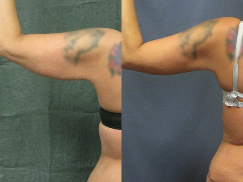 Brachioplasty Patient 02 before and after left arm raised. brachioplasty-before-after-patient-2a