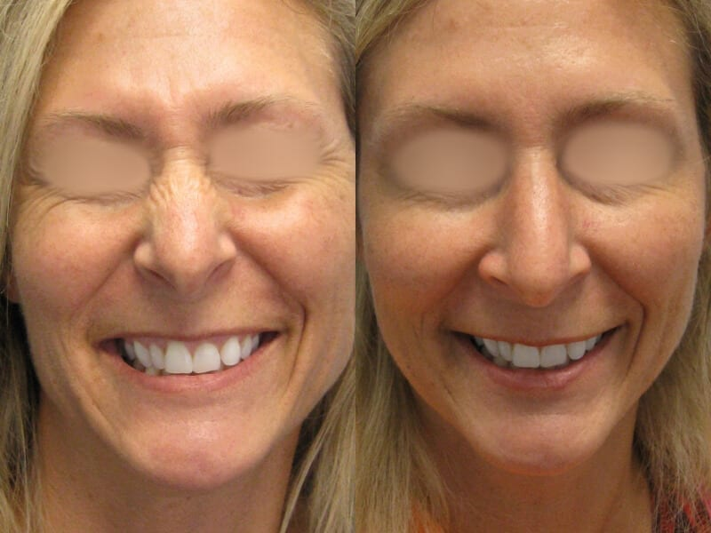 Before & After Botox Photos | Dr. Matt Goldschmidt | Independence, OH before-after-botox-dr-matt-goldschmidt-independence-oh