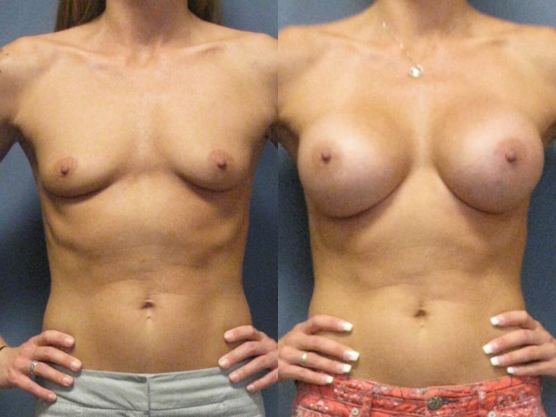Breast Augmentation – Gel Implants Patient 02 before and after facing forward, hands on hips. breast-aug-gel-before-after-patient-2a