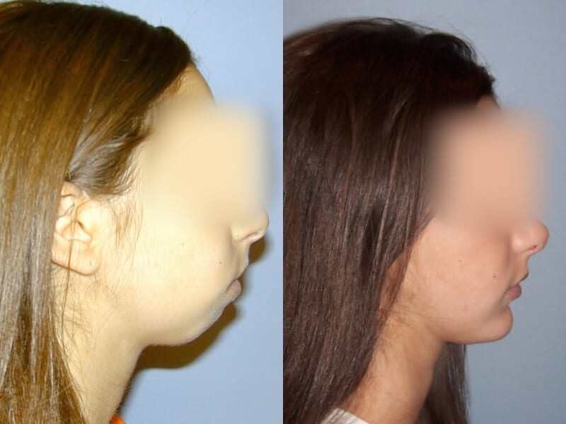 facial-implants-before-after-patient-4a