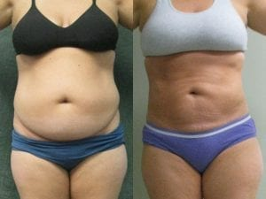 Liposuction Patient 06 before and after facing forward, arms up, showing reduced fat on abdomen.