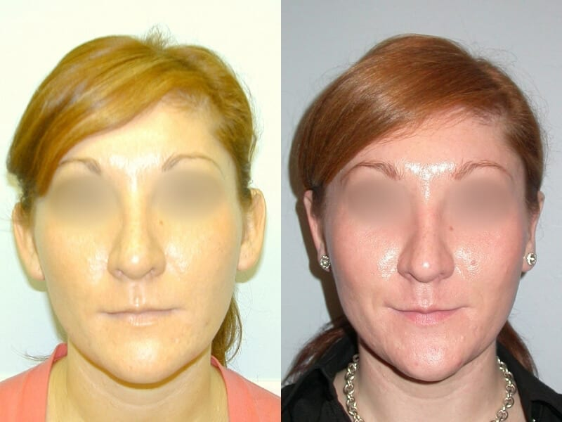 otoplasty-before-after-patient-1a