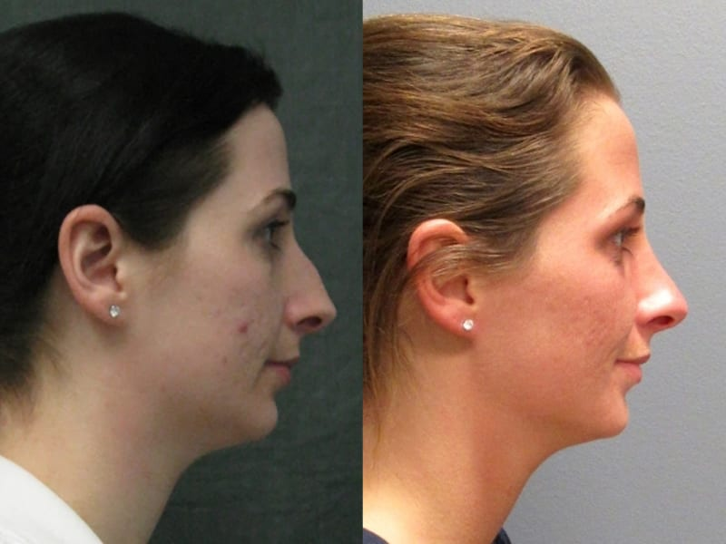 Rhinoplasty Patient 02 before and after facing right, showing change in nose. rhinoplasty-before-after-patient-2d