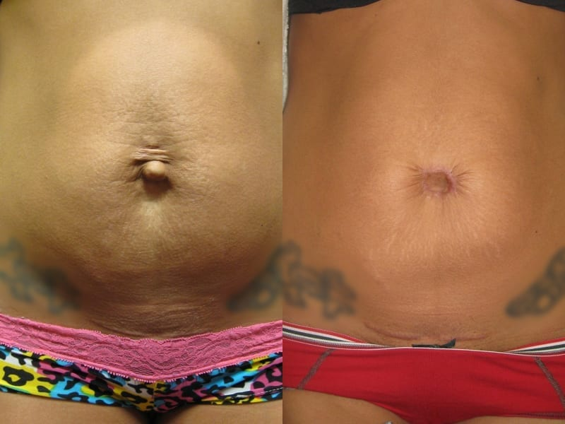 Umbilicoplasty Patient 01 before and after facing forward, showing marked difference on belly button. umbilicoplasty-before-after-patient-1a
